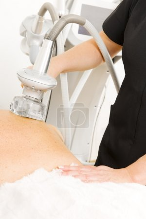 Close-up of slimming vacuum massage treatment at clinic