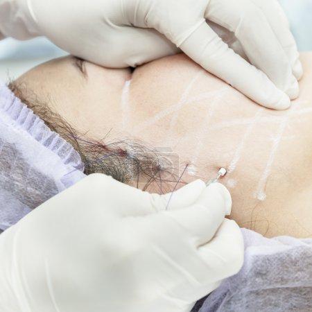PDO Suture operation