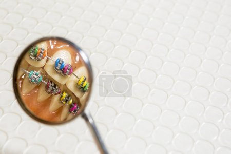 An extreme closeup of a set of false human teeth with a set of metal orthodontic braces on an isolated background