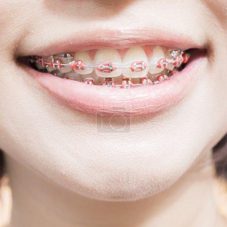 stainless steel braces