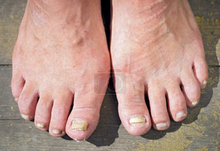 Onychomycosis with fungal nail infection...