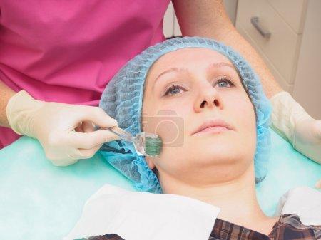 Mesoteraphy microneedle procedure. Rejuvenation, revitalization, skin nutrition, wrinkle reduction.