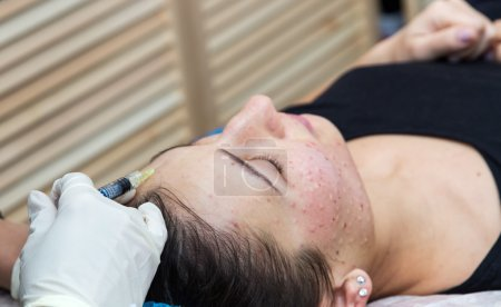 Injections on the face with cosmetic procedures.