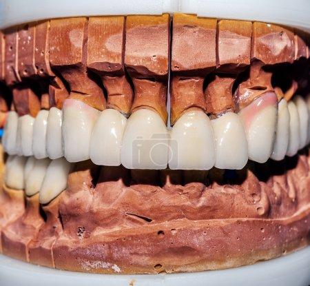 Dental Prosthesis Porcelain Zirconium Tooth...