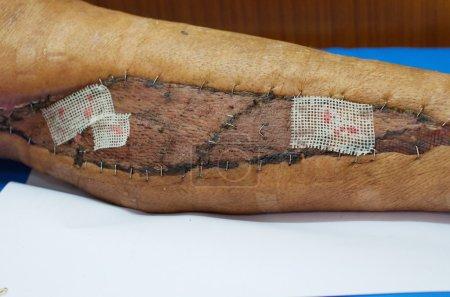 Photo pour Pansement de gaze de vaseline sur la greffe de peau plaie. - image libre de droit