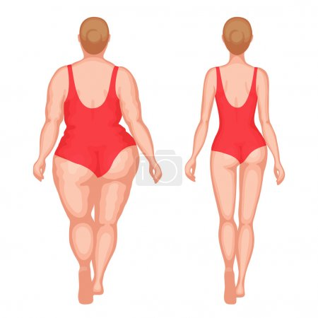 Thick woman and slender woman