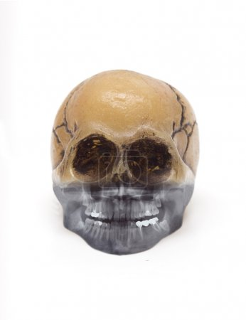 Skull and x-ray