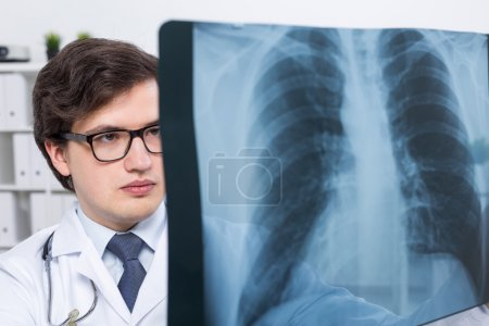 Doctor with chest x-ray