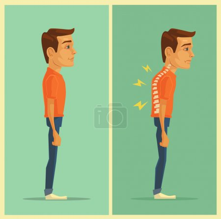 Right and wrong posture. Vector flat illustration