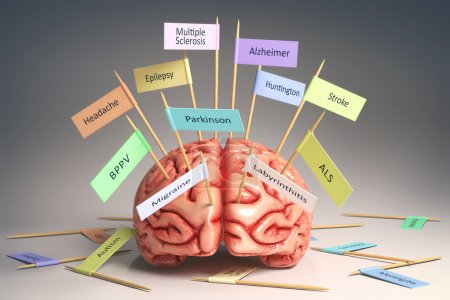 Photo for Image of a brain on the table with various nameplates of various diseases that can affect our brain. It's a 3D image with nameplates stuck by toothpick. Clipping path included. - Royalty Free Image
