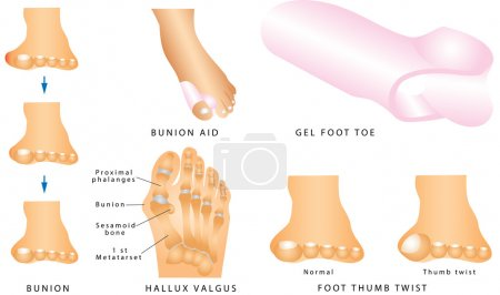 Bunion. Foot with a painful bunion