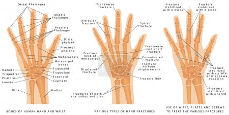 Ilustración de Various types of hand fractures. Fractures of both the radius and ulna. Displaced Fracture and Fracture without displacement. Use of wires, plates and screws to treat the various fractures - Imagen libre de derechos