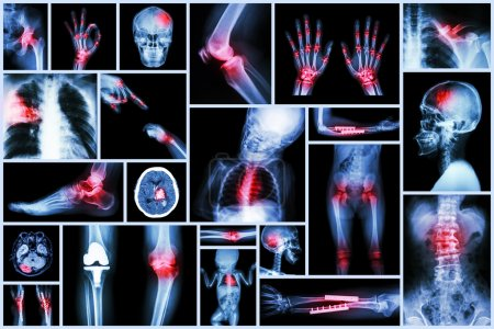 Collection X-ray multiple human's organ & orthopedic surgery & Multiple disease (Pulmonary tuberculosis , Gout , Rheumatoid arthritis ,Spondylosis , Fracture bone , Stroke , Brain tumor , etc)