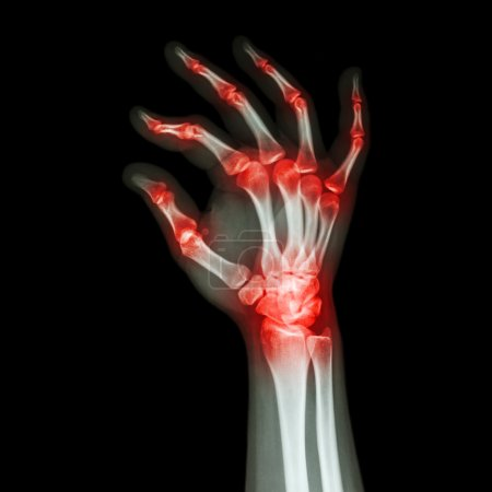 """Rheumatoid Arthritis , Gouty Arthritis""  (X-ray adult's hand with multiple arthritis)"