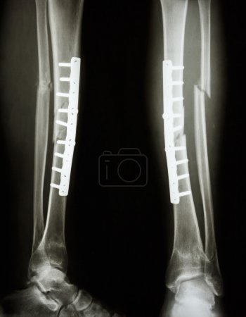 Fracture shaft of tibia and fibula