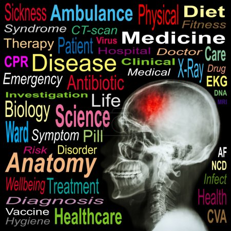 "X-ray skull and ""Stroke"" and Medical word cloud"