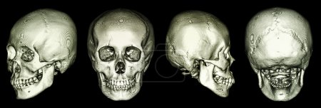 CT scan of human skull and 3D