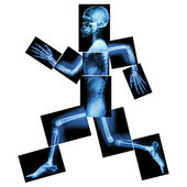 Aerobic Exercise (human bone is running) ,(Whole body x-ray : head ,neck ,shoulder ,shoulder ,arm ,elbow ,forearm ,hand ,finger ,joint ,thorax ,abdomen ,back,pelvis ,hip ,thigh ,leg ,knee ,foot ,heel)