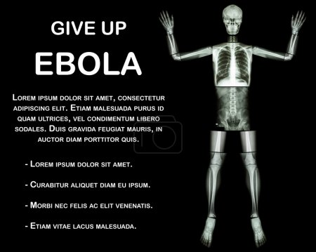 Give Up EBOLA. (Human bone raise the hand) (Whole body : head neck spine shoulder arm elbow forearm wrist hand finger thorax heart lung back abdomen pelvis hip thigh leg knee foot ankle heel)