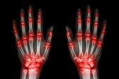 Několik společných artritida obě ruce (DNA, revmatoidní) na černém pozadí