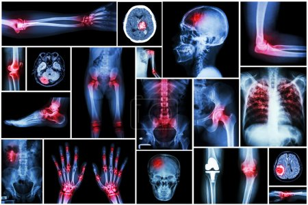 Collection x-ray multiple disease (arthritis,stroke,brain tumor,gout,rheumatoid,kidney stone,pulmonary tuberculosis,osteoarthritis knee, etc)