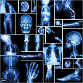 Collection X-ray