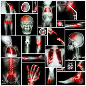 Collection of X-ray multiple part of human,Orthopedic operation and multiple disease (Shoulder dislocation,Stroke,Fracture,Gout,Rheumatoid arthritis,Bronchiectasis,Osteoarthritis knee, etc )