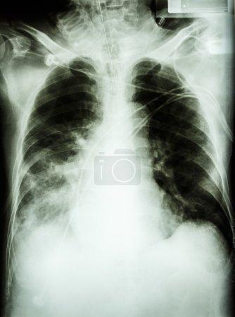 Pneumonia with respiratory failure