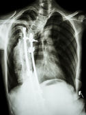 scoliosis patient was operated and internal fixed at thoracic sp