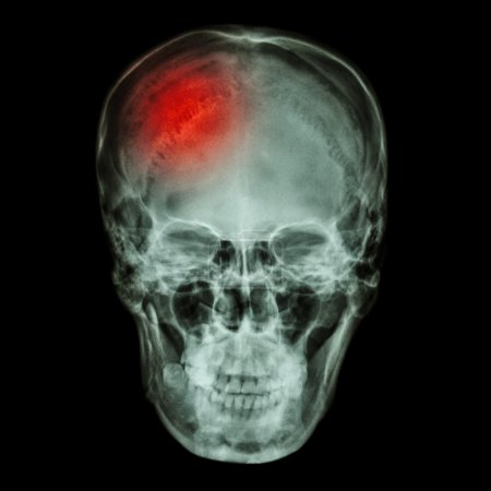 X-ray asian skull (Thai people) and headache