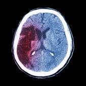 CT brain : show Ischemic stroke (hypodensity at right frontal-pa