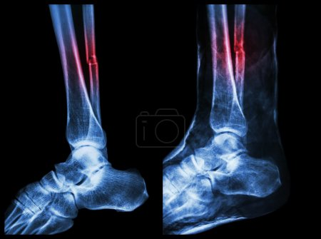 Left image : Fracture shaft of fibula (calf bone)  ,  Right image : It was splinted with plaster cast