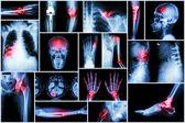 Collection X-ray multiple disease (stroke ,fracture ,osteoarthritis ,pneumonia ,tuberculosis ,spondylosis ,spondylolisthesis ,gout ,rheumatoid arthritis ,brain tumor ,orthopedic operation ,etc)