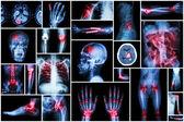 X-ray multiple disease ( stroke (CVA) , fracture , shoulder dislocation , bowel obstruction , rheumatoid arthritis , gout , osteoarthritis knee , orthopedic surgery , pulmonary tuberculosis (TB), etc)