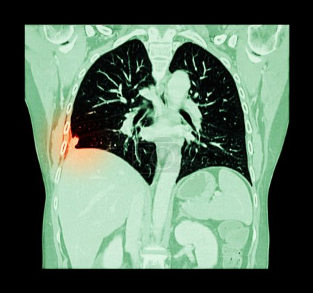 Lung cancer ( CT scan of chest and abdomen : show right lung cancer ) ( Coronal plane )