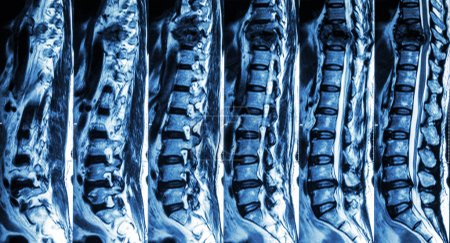 MRI of Lumbar & Thoracic spine : show fracture of thoracic spine and compress spinal cord ( Myelopathy )