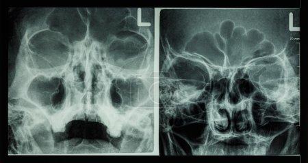 Film x-ray paranasal sinus show frontal sinus , maxillary sinus , ethmoid sinus
