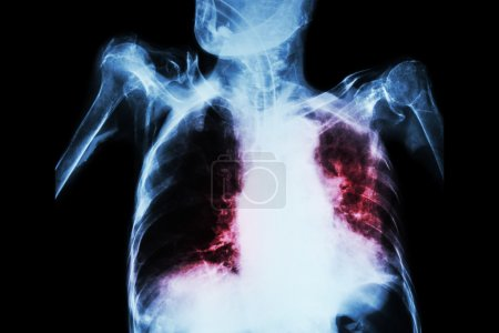 Pulmonary Tuberculosis with acute respiratory failure ( Film chest x-ray of old patient show alveolar and interstitial infiltration both lung with endotracheal tube ) due to mycobacterium tuberculosis