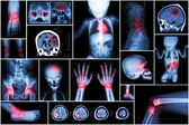 X-ray multiple part of child 's body & multiple disease ( stroke , brain tumor , rheumatoid arthritis , sinusitis , gouty arthritis , etc)( skull chest lung heart spine arm hand pelvis leg knee foot )
