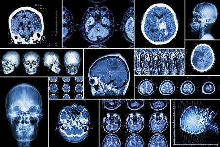 Photo pour Ensemble, collection de maladies cérébrales (infarctus cérébral, accident vasculaire cérébral hémorragique, tumeur cérébrale, hernie discale avec compression de la moelle épinière, etc.) (tomodensitométrie, IRM, IRM) (neurologie et système nerveux)  ) - image libre de droit