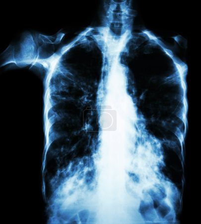 Pulmonary Tuberculosis  ( film chest x-ray :  interstitial infiltrate both lung due to Mycobacterium tuberculosis infection )