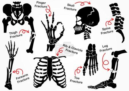 Set Bone Fracture Icon ( Pelvic , Hip , Thigh ( femur ) , Hand , Wrist , Finger , Skull , Face , Vertebra , Arm , Elbow , Thorax , Foot , Heel , Leg ) black & white design ( health care concept )