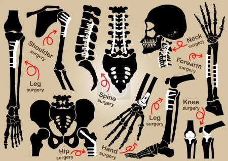 Illustration for Collection of Orthopedic surgery ( Internal fixation by plate and screw )( skull , head , neck , spine , sacrum , arm , forearm , hand , elbow ,shoulder , pelvic , thigh , hip , knee , leg , foot ) - Royalty Free Image