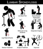 Lumbar Spondylosis symptoms pictogram ( Low back pain  refer pain to leg  leg numbness and weakness  Bowel bladder dysfunction ) and Medical  Surgical treatment