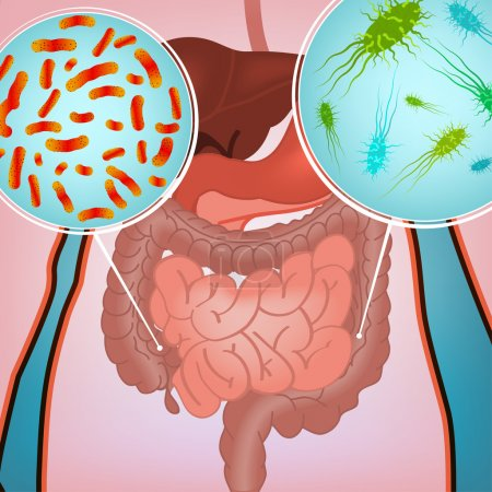 Intestinal infection image