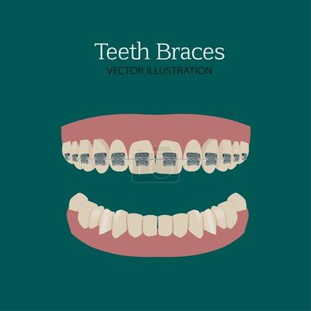Teeth braces ve
