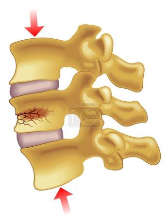 Illustration for Medical illustration of the symptoms of vertebral compression fracture - Royalty Free Image