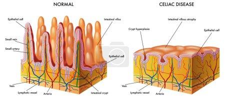 Illustration for Celiac disease - Royalty Free Image