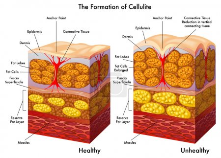 Skin cross section showing cellulite