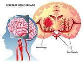 Cerebral Hemorrhage
